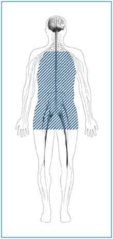 Image showing the region of the body affected by autonomic neuropathy